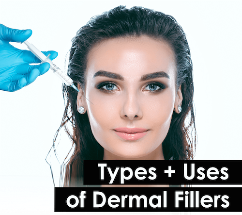 Types of Dermal Fillers in Mississauga
