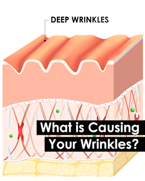 What Causes Your Wrinkles